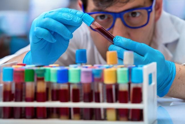 biomedicinsk analytiker tittar på blodprov